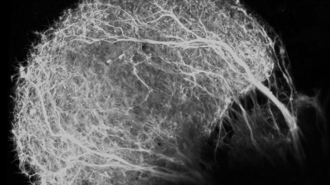 a puff of interconnected fibers in black and white