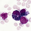 Acute myeloid leukemia cells (AML)